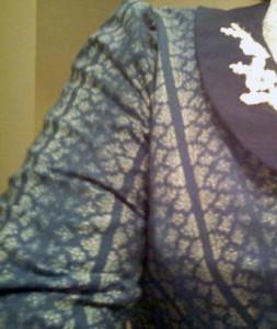 Ill-Fitting Sleeve